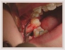 Dry Socket After Tooth Extraction